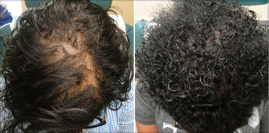 Click here to see stunning before & after photos of hair loss treatment from our clients for PRP Hair Therapy in Texas. Our results speak for themselves! See for yourself now.