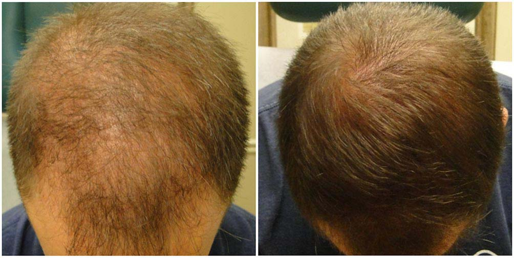Click here to see stunning before & after photos of PRP hair loss treatment from our clients for PRP Hair Therapy in Texas. Our results speak for themselves! See for yourself now.